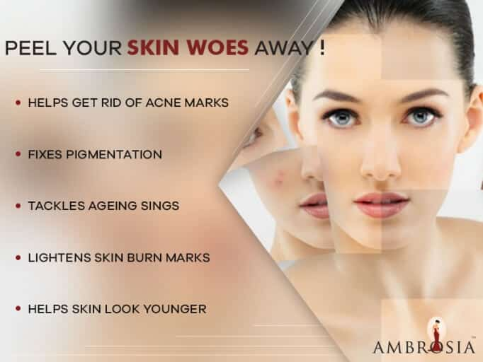 Peel to Reveal Great Skin: Chemical Peels and Its Types