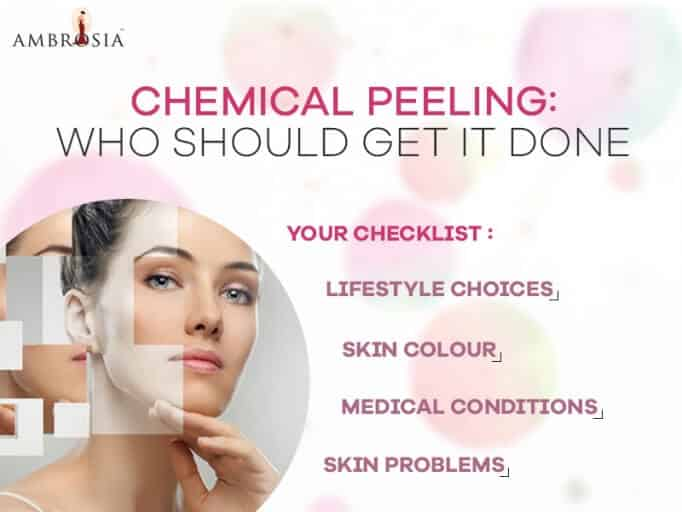 Who should get it done Chemical peeling