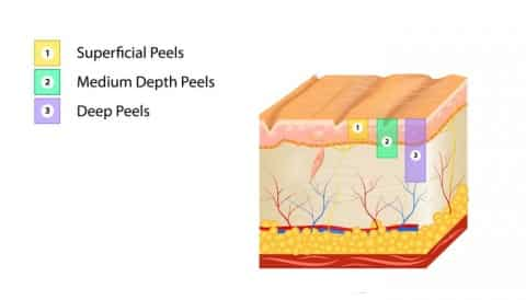 types of chemical peels