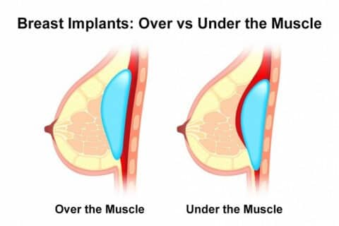 Breast Implant Over Vs Under Muscle