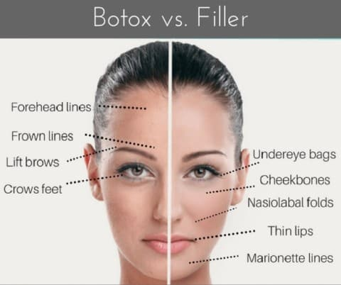 Botox and Cosmetic Fillers