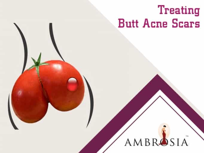 Treating But Acne Scars