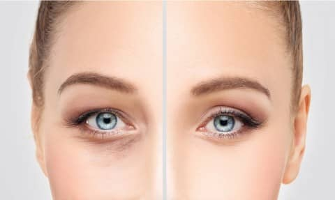 After Fillers Treatment for Undereye