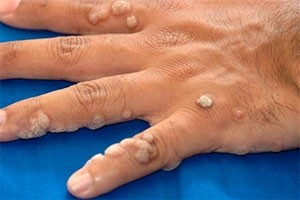 Warts Treatment in Hyderabad