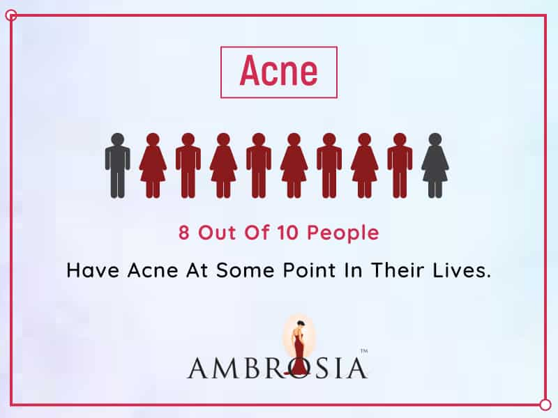 Your Acne Problems Put Together In A Single Infographic