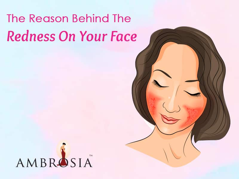 Rosacea: The Reason Behind The Redness On Your Face