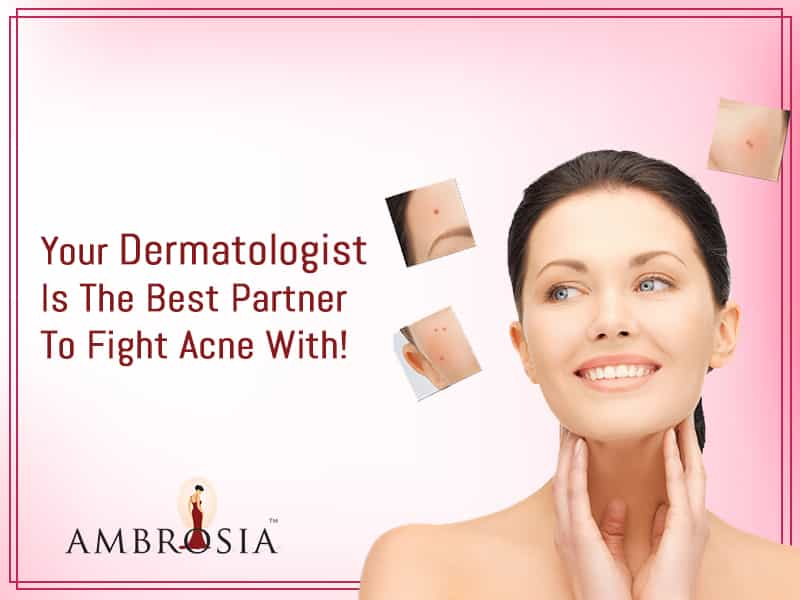 Your Dermatologist Is The Best Partner To Fight Acne With!