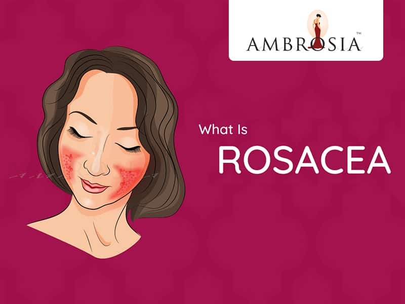 A Video To Tell You Everything About Rosacea