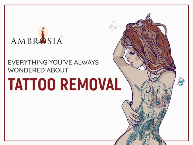 A Video About Laser Tattoo Removal And Its Procedures
