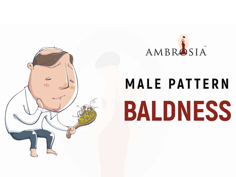 A Video On Male Pattern Baldness