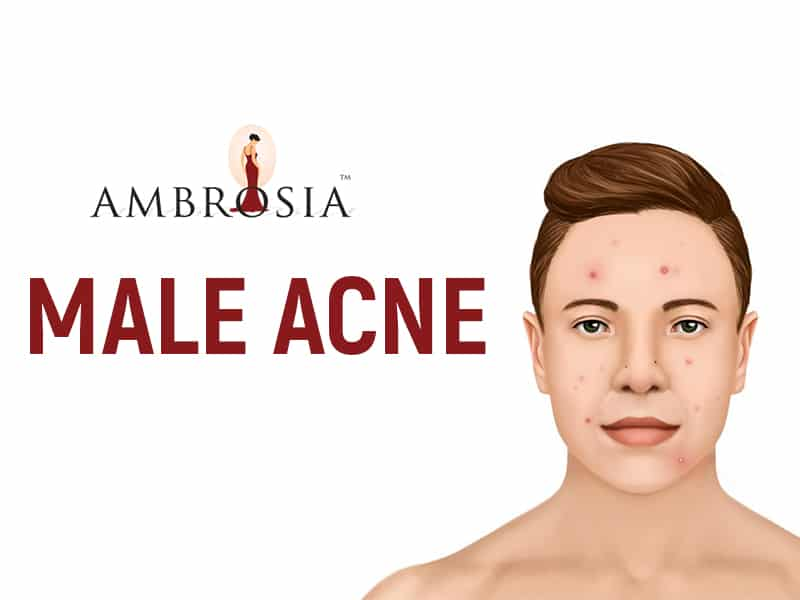 Why Do Men Get Acne? Find out.