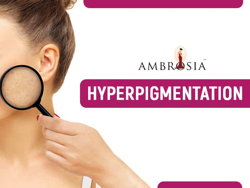 A Video About Hyperpigmentation
