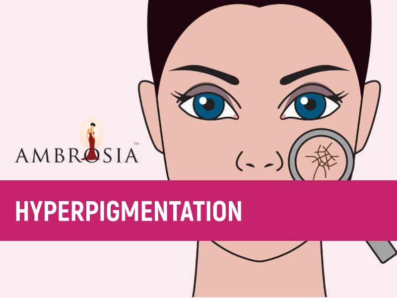 An Infographic About Hyperpigmentation