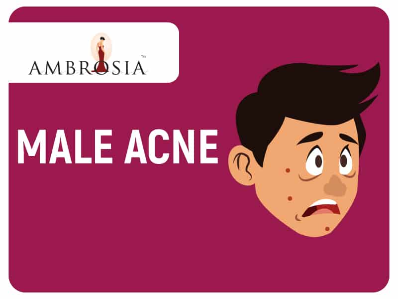 All You Need To Know About Male Acne