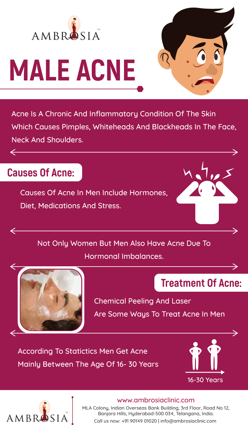 About Male Acne