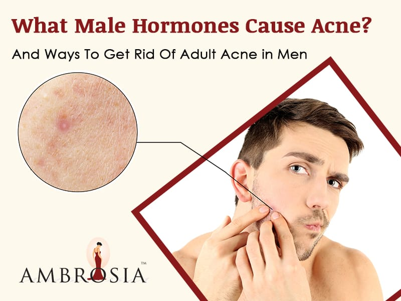 What Male Hormones Cause Acne? And Ways To Get Rid Of Adult Acne in Men