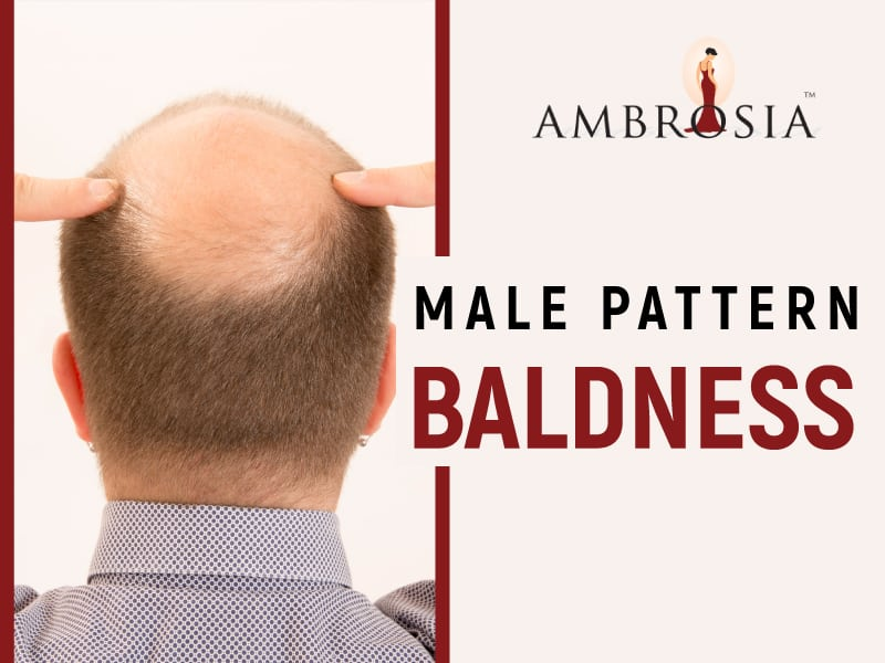 An Infographic On Male Pattern Baldness