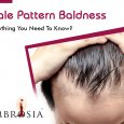 Male Pattern Baldness - Everything You Need To Know?