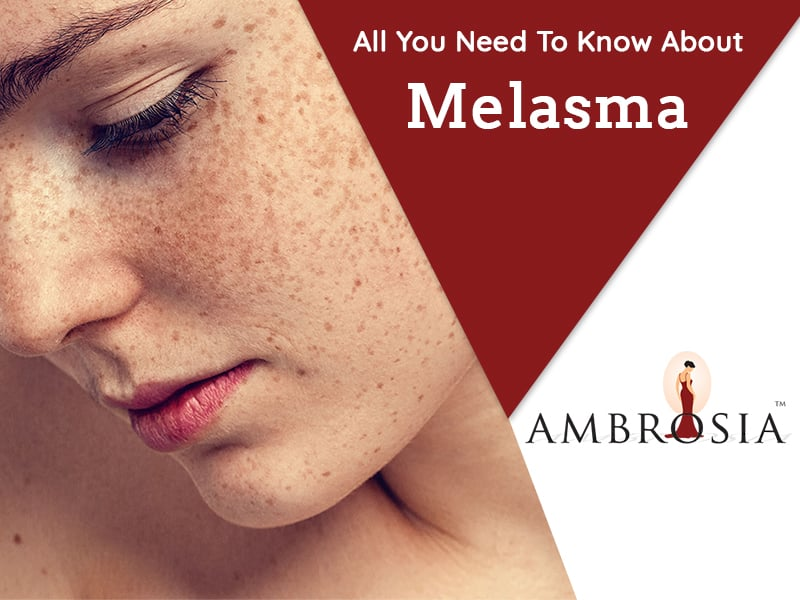 All You Need To Know About Melasma