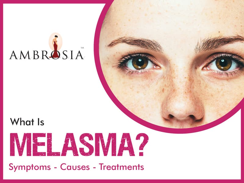An Infographic About Melasma