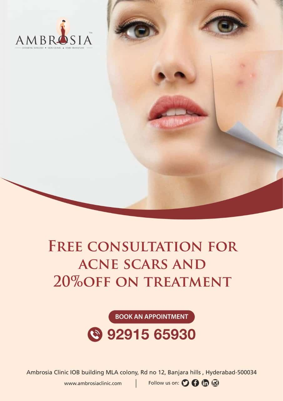 Avail free consultation for Acne Scars & 20% off on Acne treatment.