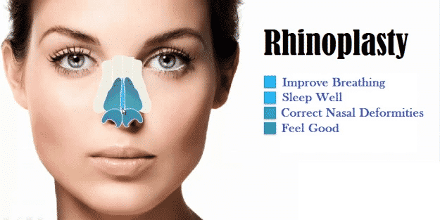 Rhinoplasty Surgery: A Complete Guide to Nose Surgery Benefits, Treatment, Cost and Results