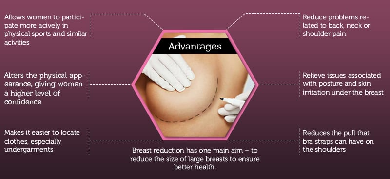 Breast Reduction Surgery: All You Want to Know