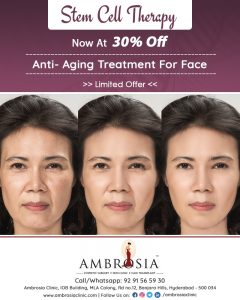 30% Off On Stem Cell Therapy: Anti-Aging Treatment For Face