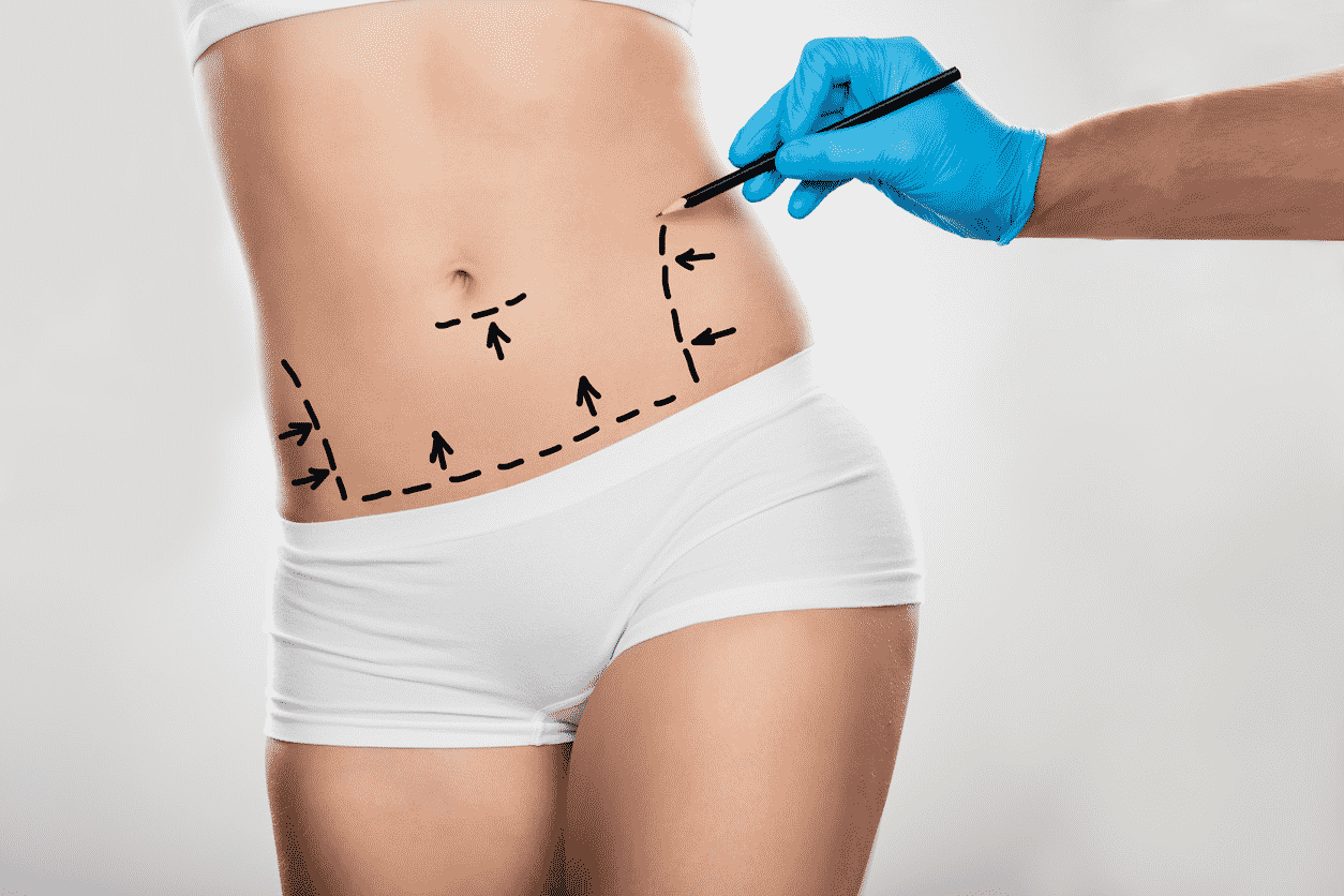 Abdominoplasty Surgery: Treatment, Procedure And Results
