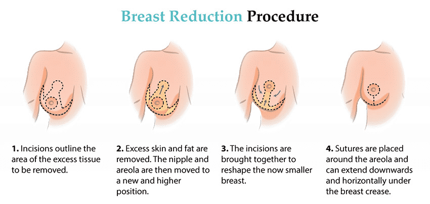 Breast Reduction In India: Cosmetic Tourism Guide