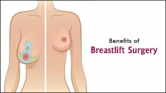 Breast Lift Surgery: Benefits, What To Expect Before And After