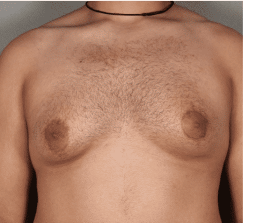 Male Breast Reduction in Hyderabad