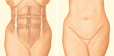 Abdominoplasty Surgery: A Complete Answer Guide To Your Every Question