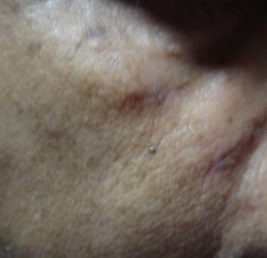 acne-after