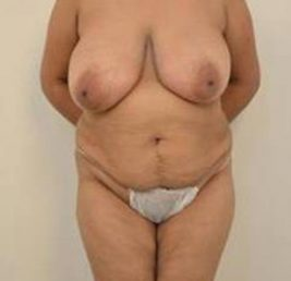 breast-lift-before