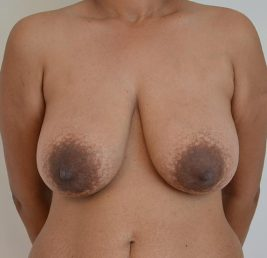 breast-reduction-before