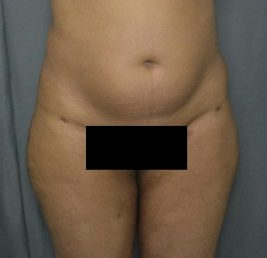 female-thigh-liposuction-after