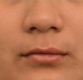 lip-implant-after