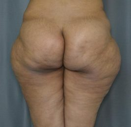 liposuction-outer-thigh-before