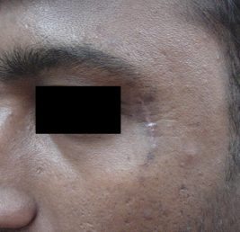 scar-removal-after