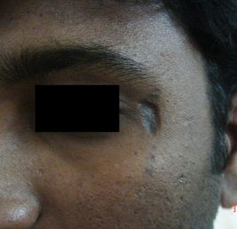 scar-removal-before
