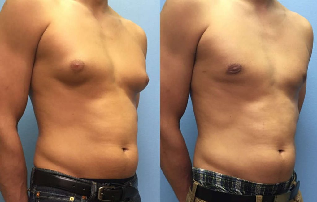 Gynecomastia after and before image